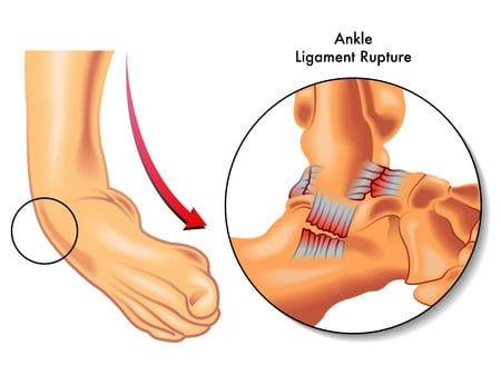 what is a sprain? : terminology tuesday - howard j. luks, md, Human Body