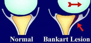 Shoulder Dislocation - Bankart Lesion - Labral Tear