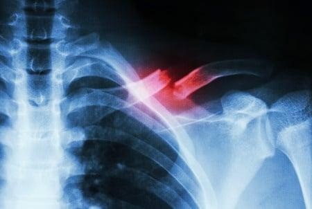 broken clavicle