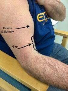 bicep tear elbow