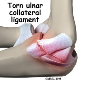 ulnar collateral ligament elbow pain