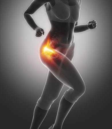 a common cause of hip pain the gluteus medius howard j luks md