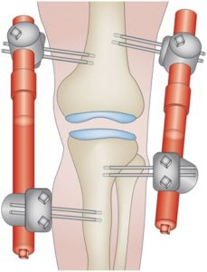 knee distraction knee replacement alternative