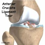ACL Tears in Children
