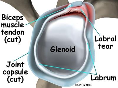 Labrum Tears of The Shoulder – Howard J  Luks, MD
