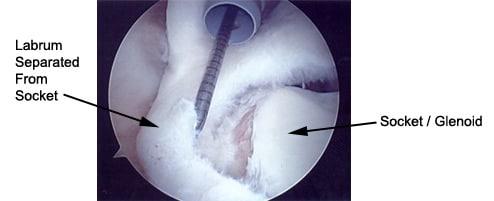 Shoulder Dislocations - Howard Luks MD