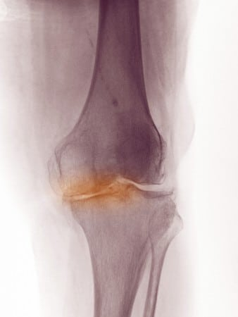 medial joint space arthritis