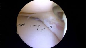 Do meniscus tears require surgery