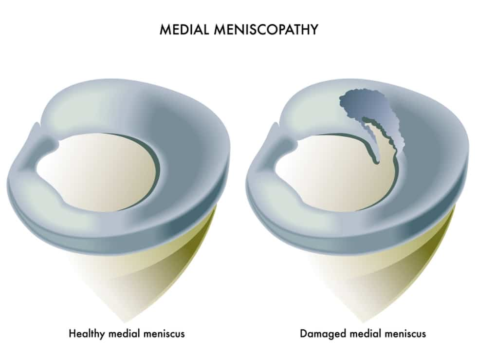 meniscal injuries In severe injuries, other parts of the knee may also be damaged in addition to a meniscal tear for example, you may also sprain or tear a ligament meniscal cartilage does not heal very well once it is torn.