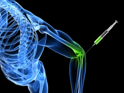 PRP Injection Tennis Elbow
