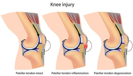 Patellar Tendonitis- jumpers knee