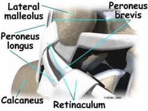 peroneal tendon injury