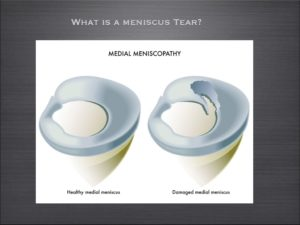 Posterior-Horn-Medial-meniscus-tear