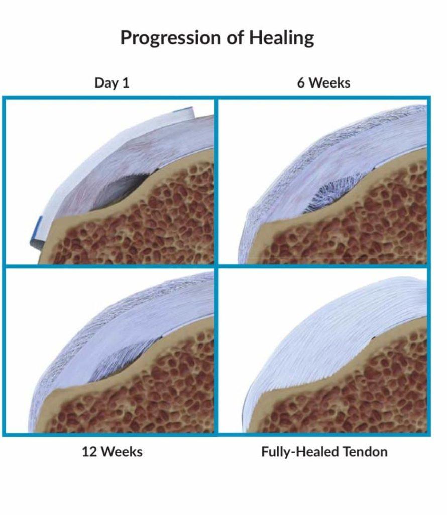rotator cuff tendinosis cure