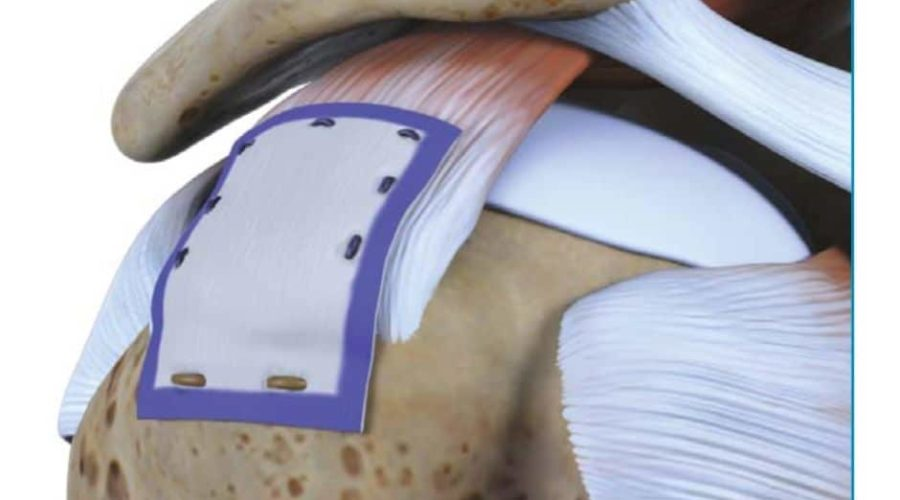 partial rotator cuff tear repair
