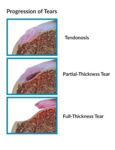 Rotator Cuff Tendinosis and night pain