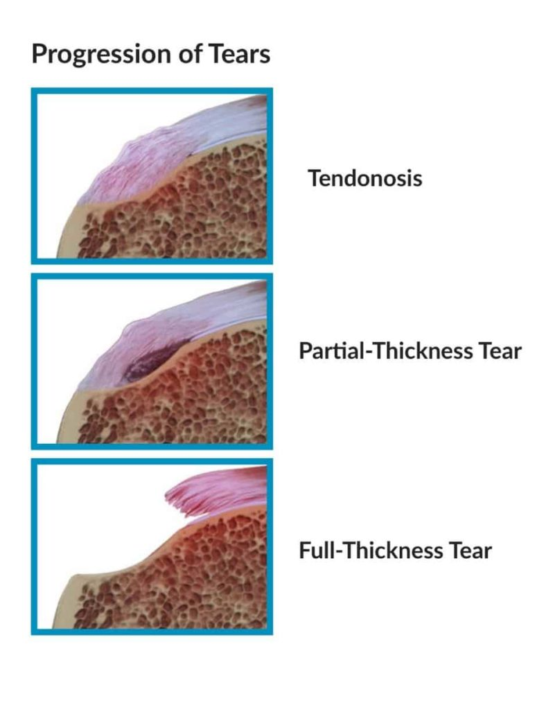 Rotator Cuff Tendinosis surgical cure