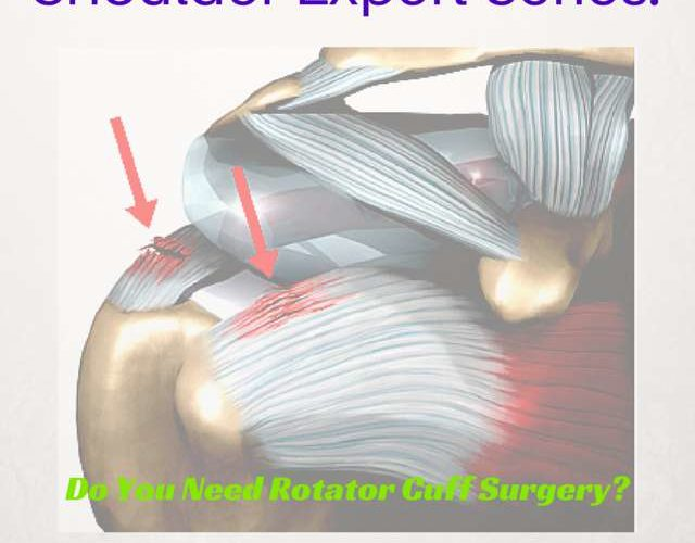 Do I need rotator cuff tear surgery