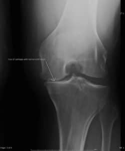 knee arthritis knee replacement alternative