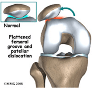 kneecap pain dislocation