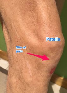 patellar_tendonitis_jumpers_knee