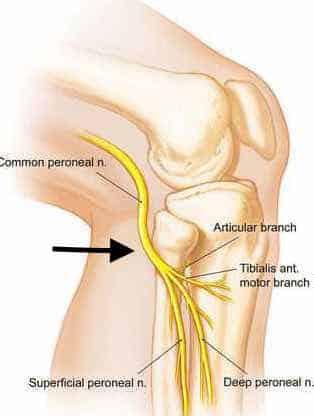 peroneal nerve leg pain