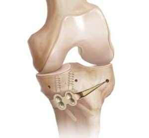 Tibial osteotomy - knee replacement alternative