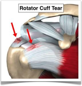 What is a rotator cuff tear