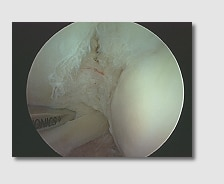 partial thickness rotator cuff tear