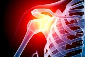 shoulder pain - Howard Luks, MD - Westchester County NY