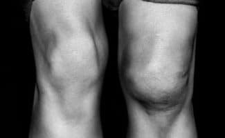 swollen knee serious knee injury