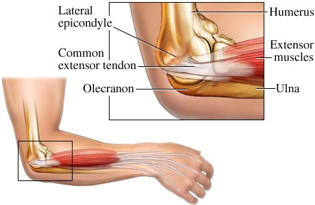 tennis-elbow-muscle-Luks_Westchester-PRP