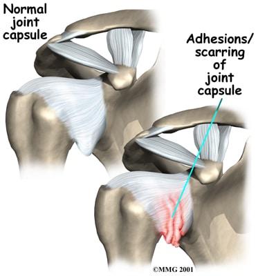 What is a frozen shoulder